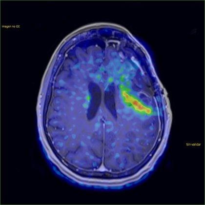 Estudio indaga en los pormenores detrás de los meduloblastomas, un cáncer cerebral infantil común