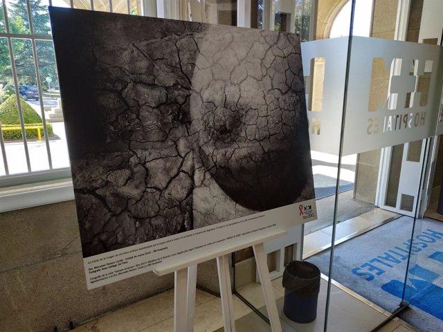 Exposición itinerante sobre los estadios del cáncer de mama