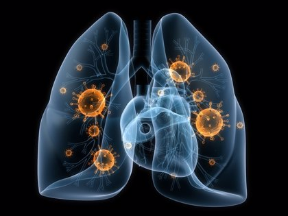 """Experta considera """"clave"""" que el paciente de cáncer de pulmón reciba el mayor número de terapias eficaces"""
