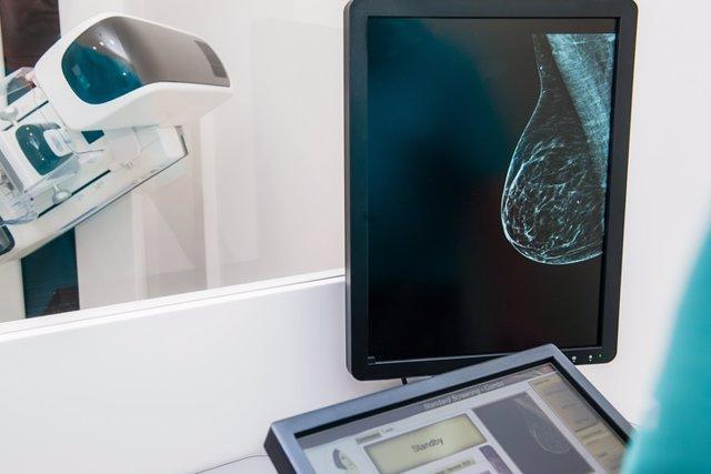 Imagen de una mamografía para detectar cáncer de mama