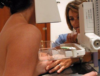Venciendo el miedo a la mamografía: la supervivencia con diagnóstico precoz es del 85%