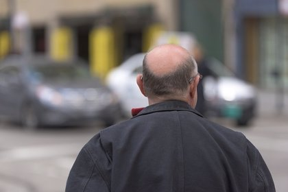 ¿Por qué se cae el pelo? Cuatro causas de la alopecia