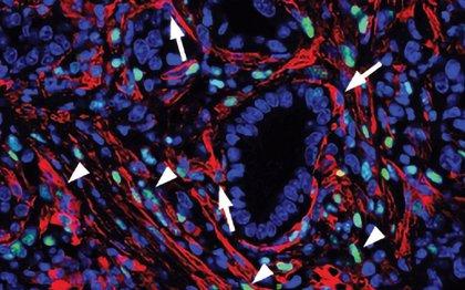 Identifican una posible vía para tratar el cáncer de páncreas