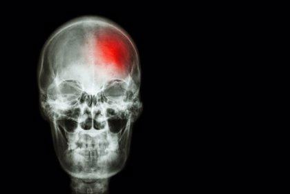 """Neurólogos avisan que, ante el ictus, """"cada minuto"""" sin actuación médica """"se pierden 1,8 días de vida saludable"""""""