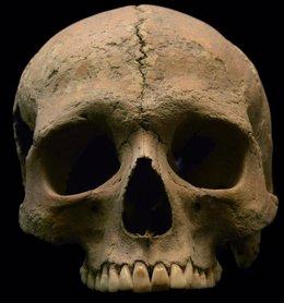 Cráneo, calavera, restos óseos