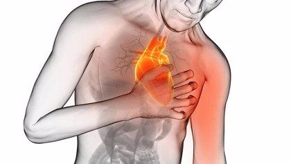 Los síntomas de trastorno de estrés postraumático aumentan el riesgo de complicaciones o muerte tras un infarto