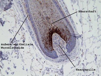 Descubren el gen responsable de la hipotricosis simple, una forma rara de pérdida de pelo