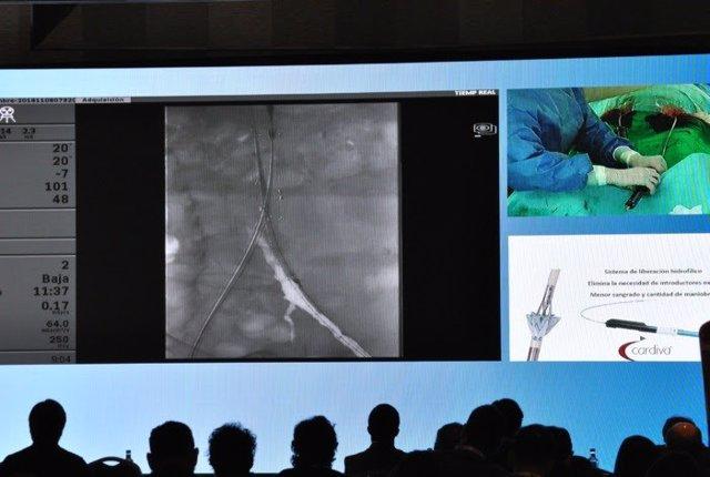 Retransmisión de una intervención de aorta abdominal de Hospital de Basurto
