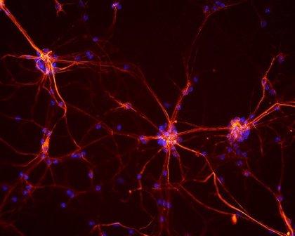 Investigadores españoles logran reproducir funciones complejas cerebrales 'in vitro'