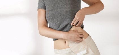 Estomaterapeutas ponen en marcha el primer proyecto para la humanización de cuidados en ostomía