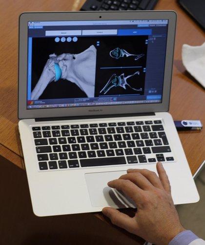 Cirugía virtual para mejorar la planificación y resultado de las prótesis de hombro