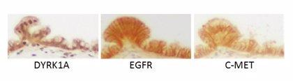 Identifican una potencial diana terapéutica en el tipo de cáncer de páncreas más frecuente