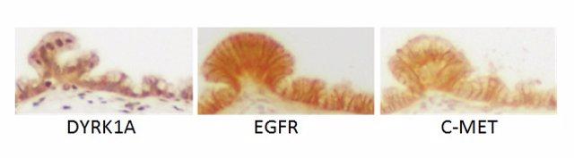 Estudio De Una Proteína Relacionada Con Cáncer De Páncreas