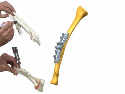 Valdecilla y HvV usan impresión 3D en una operación para corregir una deformidad oséa