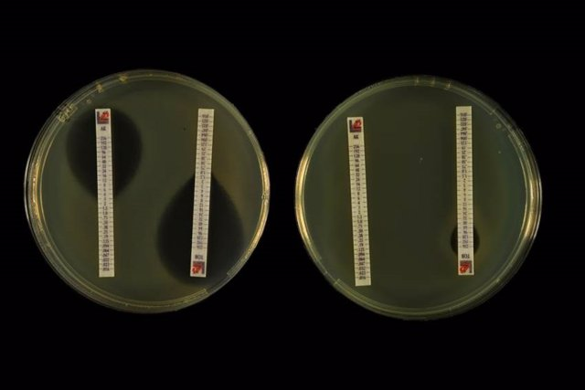 Inhibición del crecimiento bacteriano que producen los antibióticos