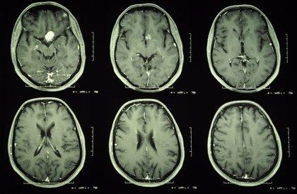 Cada año se detectan en España cerca de 4.000 tumores de origen desconocido