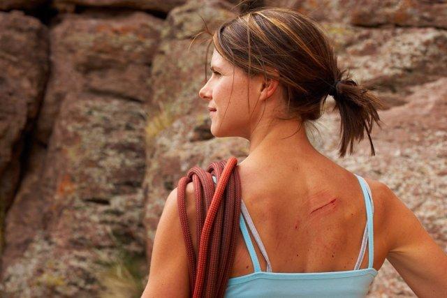 Cicatriz, herida, espalda