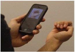 Desarrollan una 'app' que puede detectar la anemia con una foto de las uñas