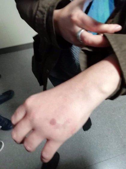 Dos detinguts i almenys set ferits en les càrregues policials contra antifeixistes a Terrassa