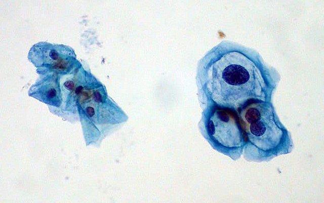 Mayor riesgo de cáncer cervical en mujeres con VPH positivo, pero sin anomalías celulares