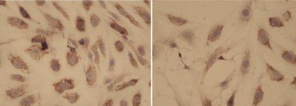Una terapia combinada de tres fármacos puede mejorar el tratamiento de la mielofibrosis