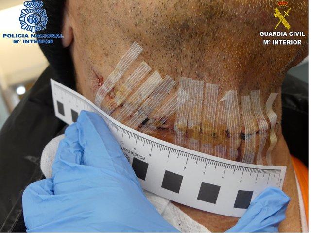 Hombre herido con un cúter