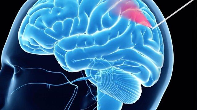 Aguja de biopsia que hace más segura la cirugía cerebral