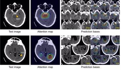Un sistema de inteligencia artificial diagnostica rápidamente las hemorragias cerebrales