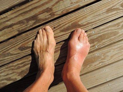 Los ataques de gota son una de las afecciones más comunes en los pies durante las Navidades