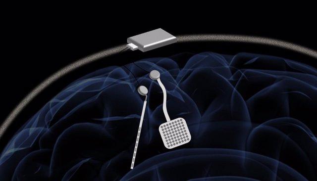 Marcapasos inalámbrico para el cerebro