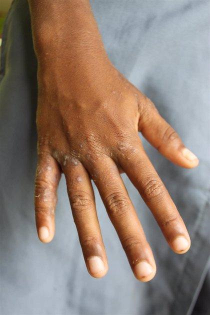 Recomiendan evitar exámenes de cuerpo completo para detectar sarna