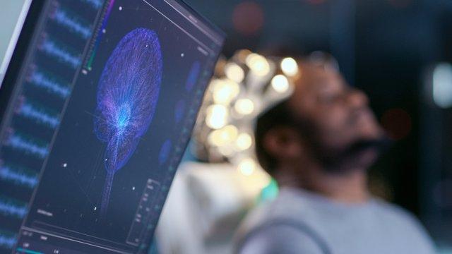Cerebro, pruebas