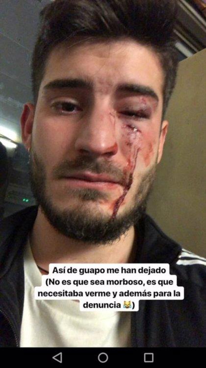 AMPLIACIÓ:Dos detinguts per una agressió homòfoba a l'estació de metro d'Urquinaona