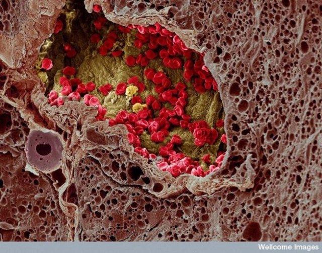 Imagen a microscopio electrónico de un cáncer de piel con melanoma