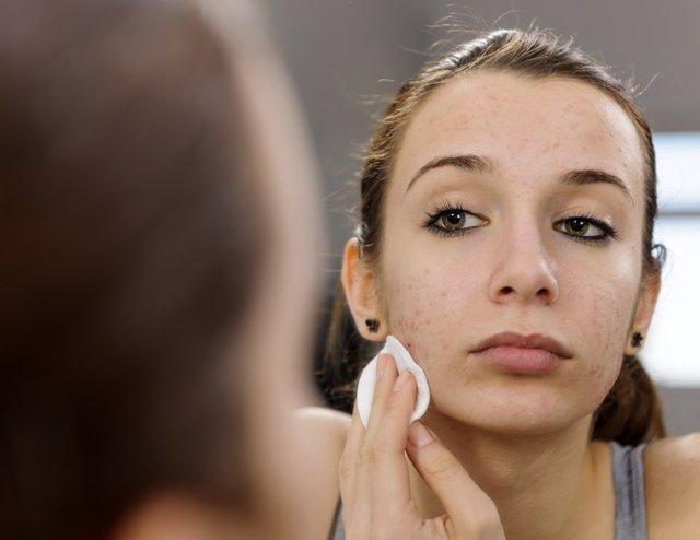 Mujer acné