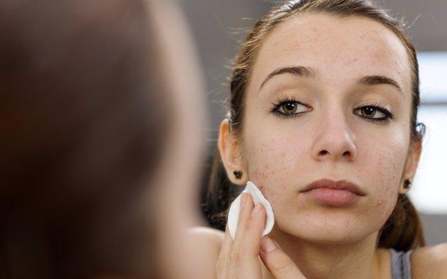 ¿Es cierto que el acné empeora en invierno? Sigue estos consejos