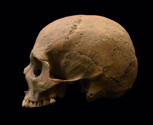 Calavera, cráneo, restos óseos