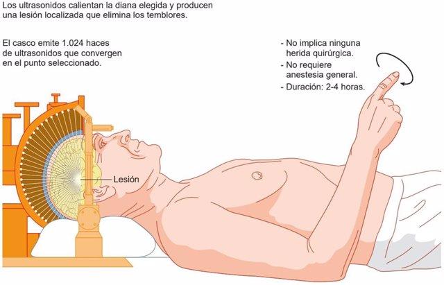 Tecnología HIFU para tratar sin cirugía el temblor de Parkinson