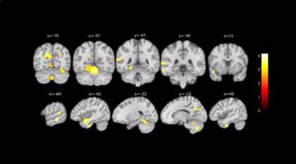 Detectan cambios cerebrales parecidos al Alzheimer en personas con problemas de memoria