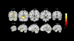 Cambios en el cerebro detectados por el estudio de la Fundación Pasqual Maragall