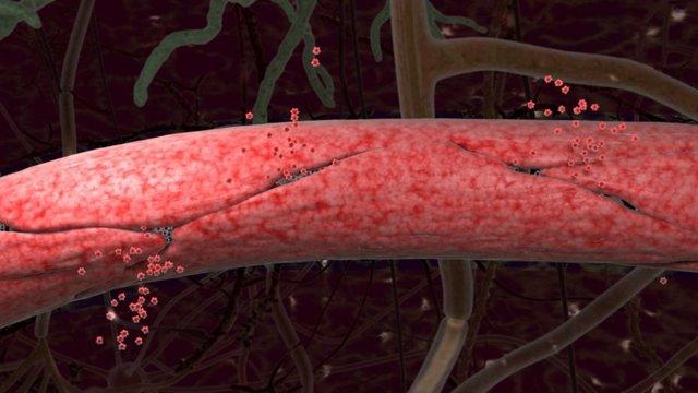 Representación artística que muestra las fugas en los capilares del cerebro