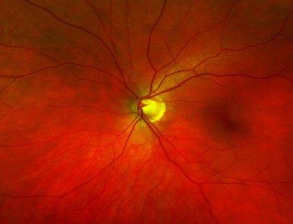 Consiguen prevenir la ceguera por degeneración macular en modelos animales