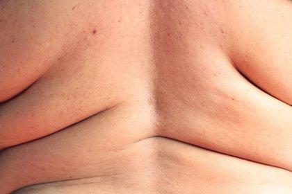 Obesidad y diabetes, principales motivos de enfermedad por hígado graso