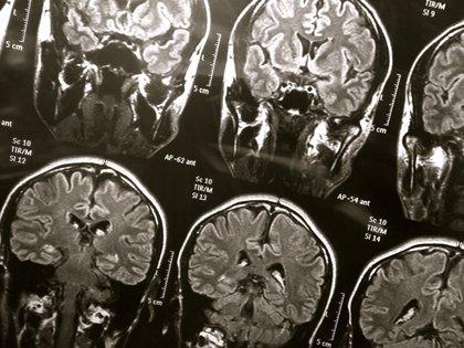 La RMN mejorada podría proporcionar información sobre el Alzheimer
