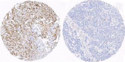 Investigadores españoles realizan avances en la predición del cáncer de mama triple negativo