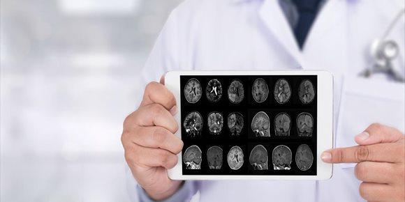 6. Hallan un patógeno bacteriano que puede ser clave en el desarrollo del Alzheimer