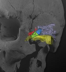 Cráneo y oído