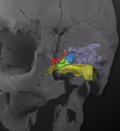 Las investigaciones del yacimiento de Atapuerca podrían aplicarse para estudiar la sordera