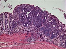 Tumor de colon. Cáncer.