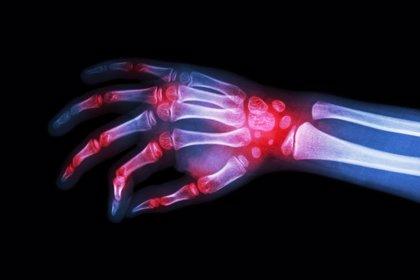 Identifican una mutación genética que puede causar artritis severa en niños